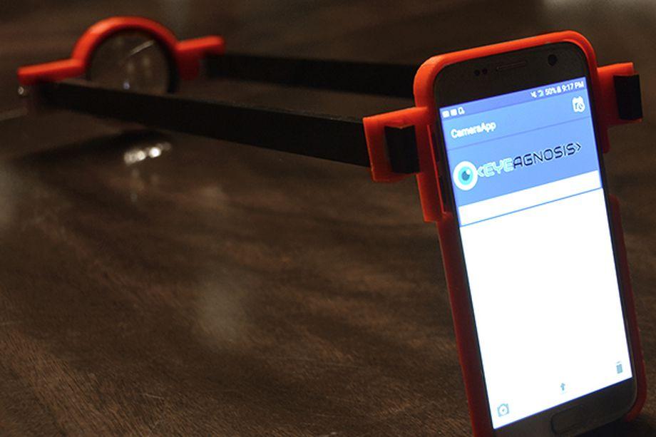 Una adolescente ha creado una lente impresa en 3D y la aplicación que puede detectar la enfermedad ocular