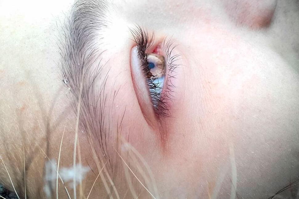 ¿Son tus ojos sensibles a la luz?