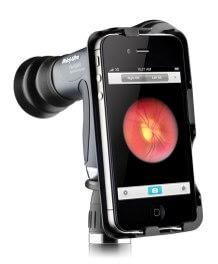 Adaptadores de lámpara de hendidura convierten a los smartphones en cámaras clínicas