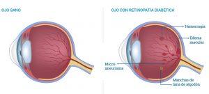 Diferencia entre Ojo Sano y Ojo con Retinopatía Diabetica