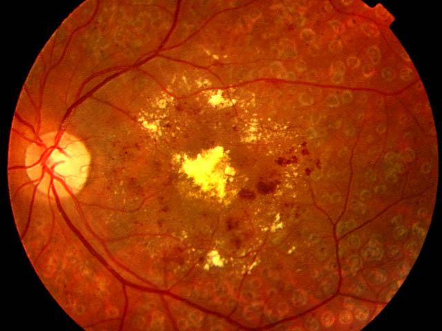 retinopatía diabetica grave